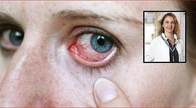 Coronavirus'te Gözünüze DİKKAT!!